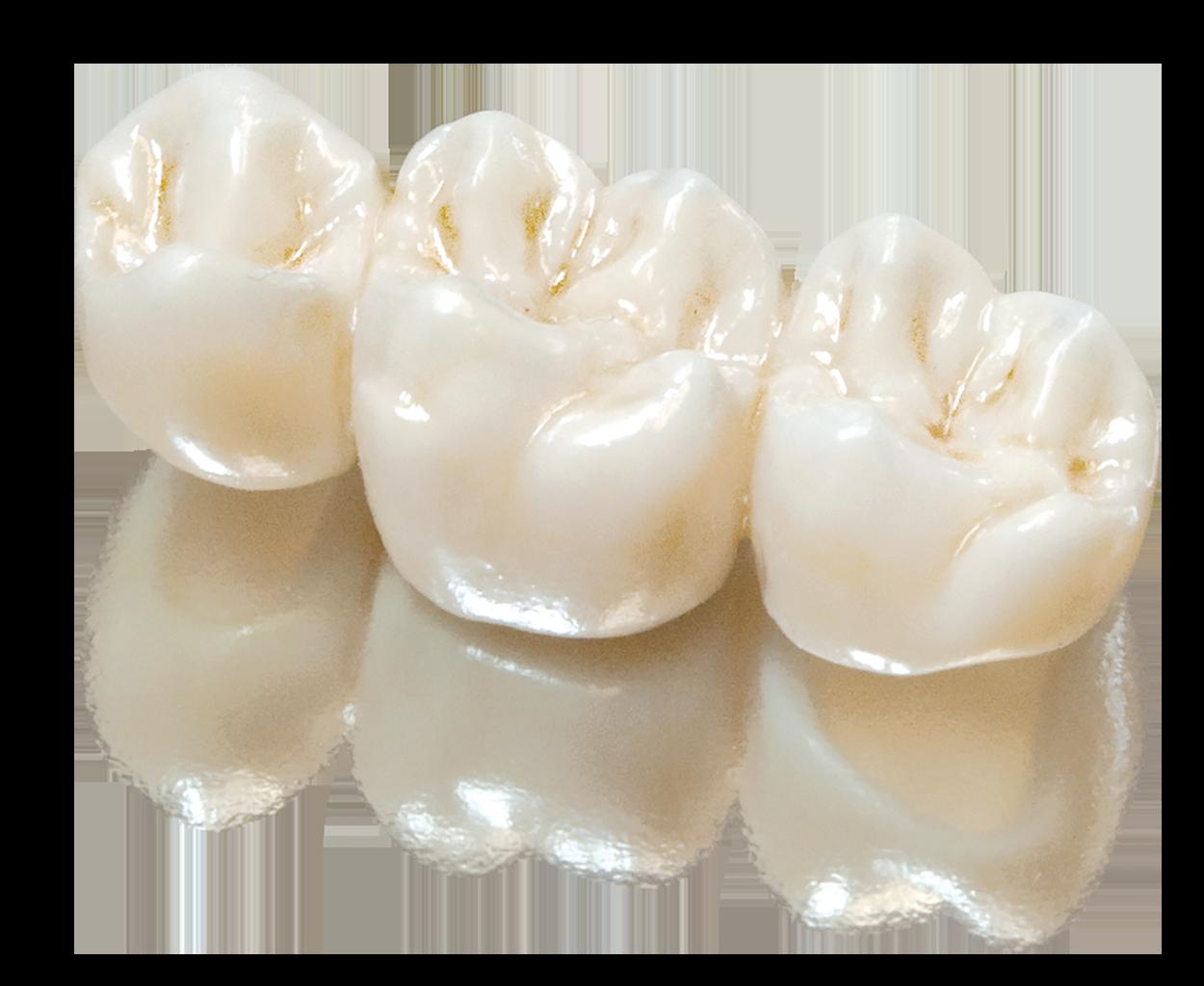 SunCeram – Sun Dental Labs