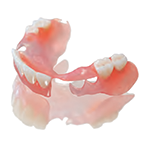 sunflex-bilateral-partial-denture