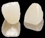 emaxcad-anteriorcrown-01