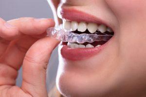 Digital Dental Lab Services Jacksonville FL