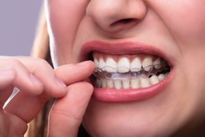 Clear Aligners Port St. Lucie FL